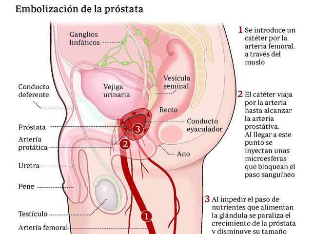 tratamiento para la prostatitis)