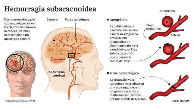 Lesión en la cabeza y sangrado interno