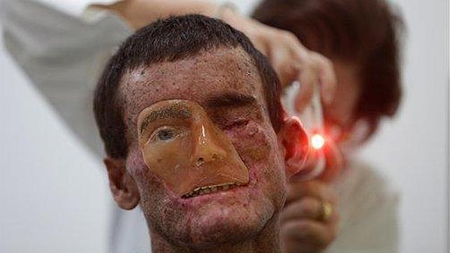 fotos de enfermedades raras en la piel
