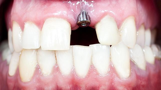Imagen de un implante dental