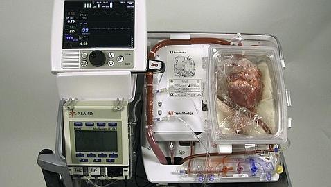La máquina que permite conservar el corazón