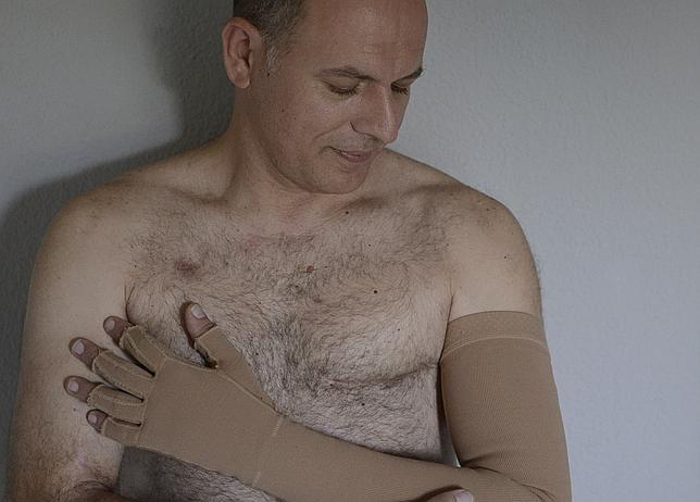 Pedro Márquez, operado de cancer de mama, posa para ABC