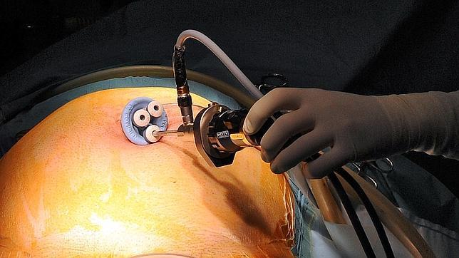 cancer de colon pruebas