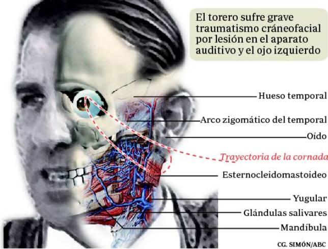 Cirugía reconstructiva para devolverle la mímica