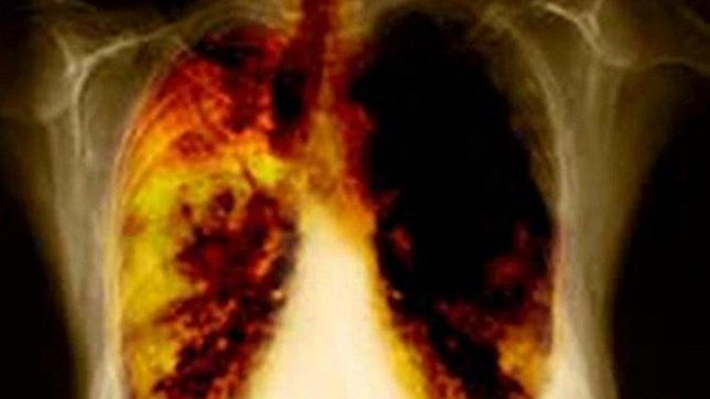 El cáncer de pulmón aumenta entre las mujeres españolas casi un 50%