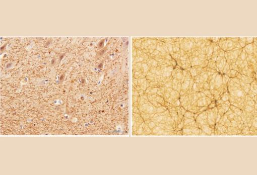 Izquierda: corte de cerebelo, con factor de aumento 40x, obtenido con microscopía electrónica (Dr. E. Zunarelli, Hospital Universitario de Módena); derecha: sección de una simulación cosmológica, con una extensión de 300 millones de años luz en cada lado (Vazza et al.2019 A&A)