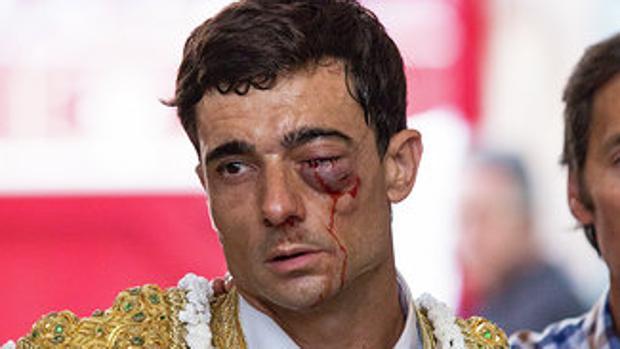 La sangre cae por el rostro de Paco Ureña, con el ojo amoratado y cerrado