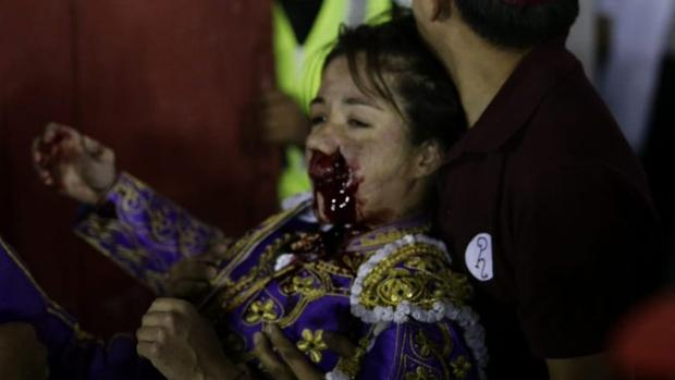 Hilda Tenorio, con la cara ensangrentada tras la cornada en la boca