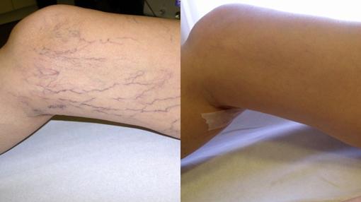 Operacion de varices antes y despues de adelgazar
