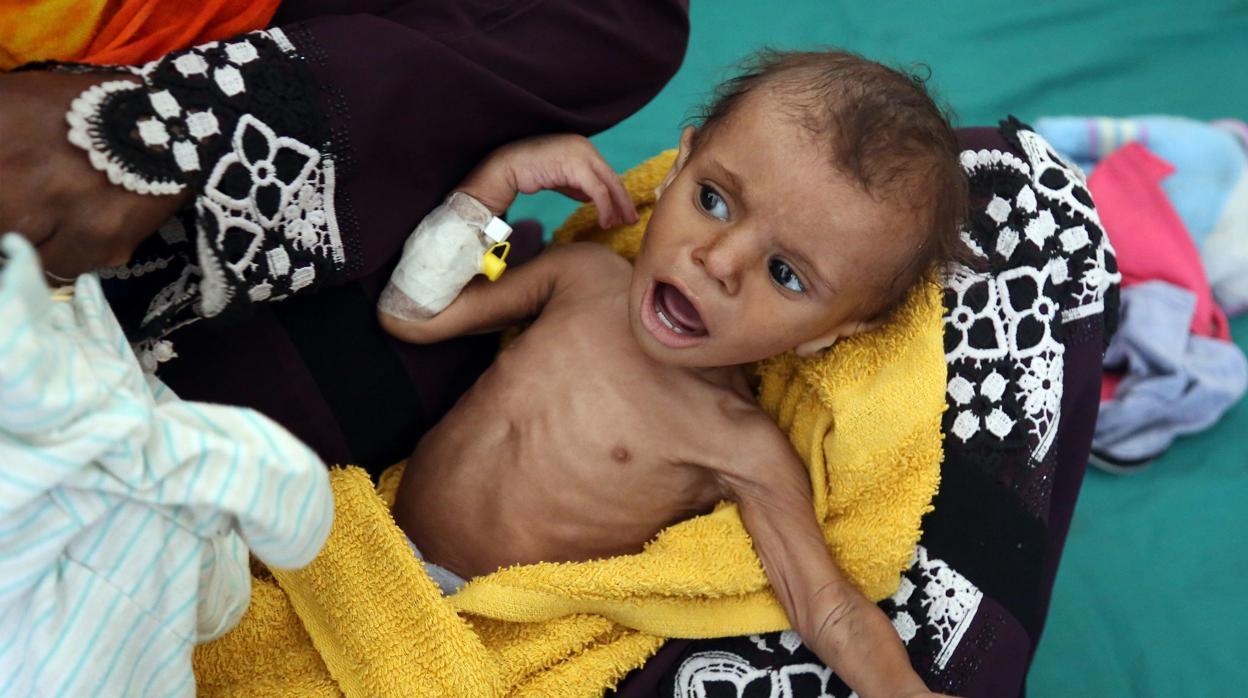 El hambre mata a 85.000 niños en Yemen