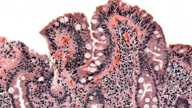 cuales son los síntomas de una enfermedad celiaca
