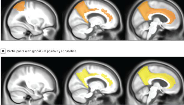 Acúmulo de proteína beta en los cerebros de los pacientes