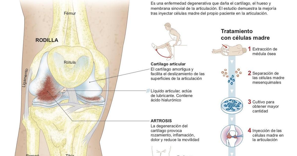inyeccion gestation deterioro rodilla