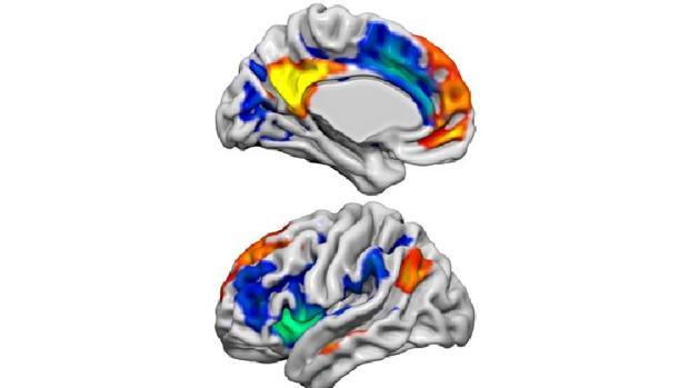 La imagen muestra dos redes cerebrales -Red de Modo Predeterminado- (rojo / amarillo) y la Red de Salud (azul / verde) que tienen roles importantes en la función social y emocional. Estas dos redes en el cerebro se alteraron cuando los voluntarios recibieron la hormona kisspeptina, y esto se asoció con cambios en la actividad cerebral relacionada con la aversión sexual y la excitación sexual.