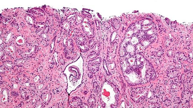 cáncer de próstata g8 20