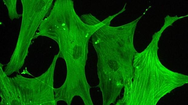 Células de válvulas aórticas humanas con sus microfilamentos tintados vistas al microscopio