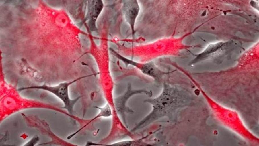 Descubren una nueva célula que puede curar el corazón