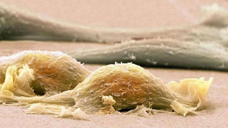 Sarcoma: Estos son los síntomas del cáncer raro que afecta sobre todo a niños y jóvenes