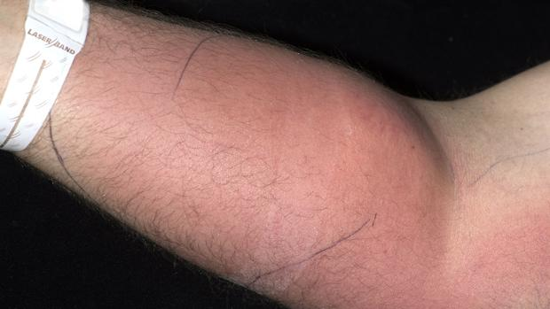 Como colocar una inyeccion intramuscular en el brazo