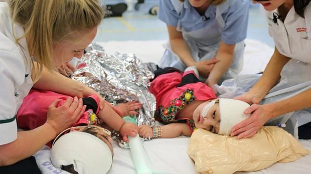 Las dos niñas de Pakistán, en una foto del hospital